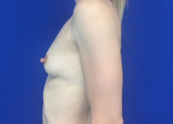 Breast Augmentation Gallery - Patient 4594830 - Image 7