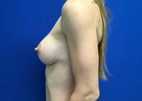 Breast Augmentation Gallery - Patient 4594830 - Image 8