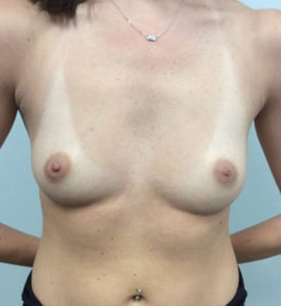 Breast Augmentation Gallery - Patient 4594834 - Image 1