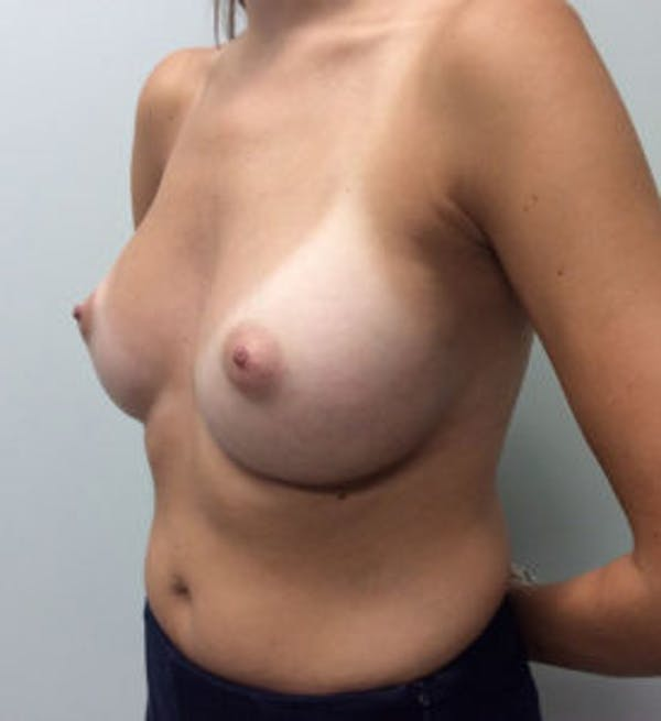 Breast Augmentation Gallery - Patient 4594834 - Image 4