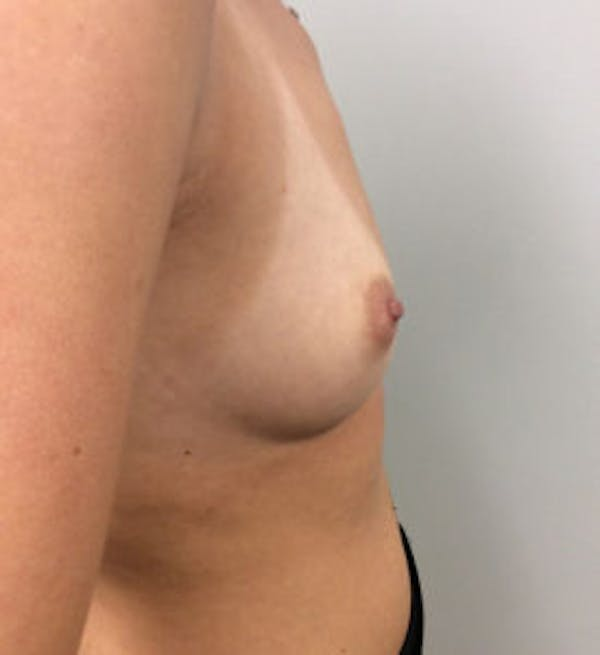 Breast Augmentation Gallery - Patient 4594834 - Image 5