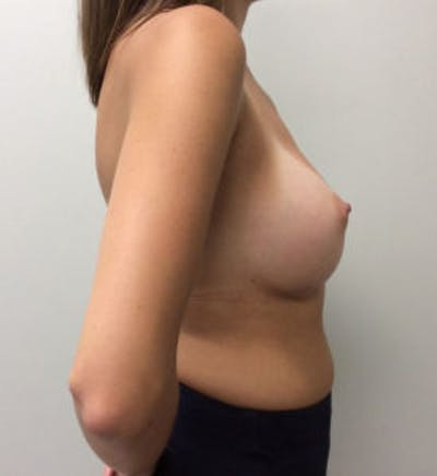 Breast Augmentation Gallery - Patient 4594834 - Image 6