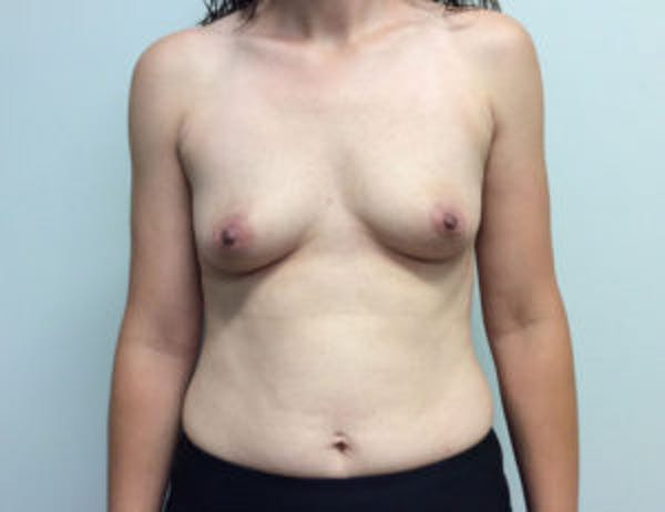 Breast Augmentation Gallery - Patient 4594835 - Image 1