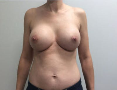 Breast Augmentation Gallery - Patient 4594835 - Image 2