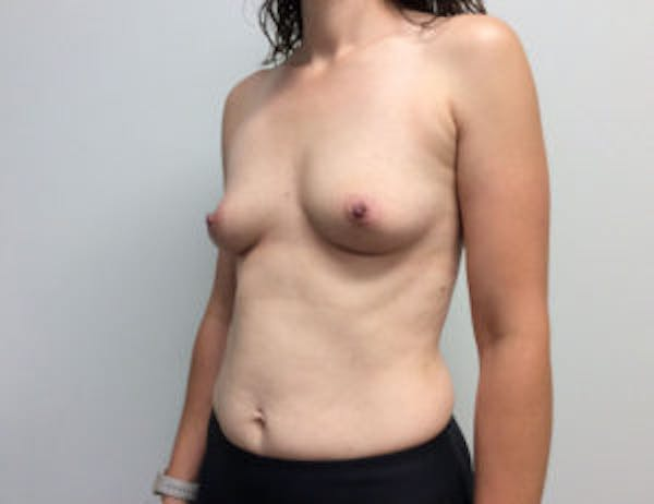 Breast Augmentation Gallery - Patient 4594835 - Image 3