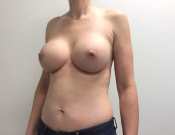 Breast Augmentation Gallery - Patient 4594835 - Image 4