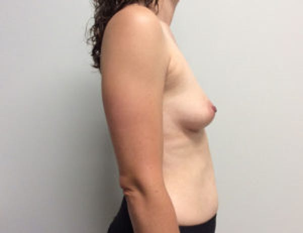Breast Augmentation Gallery - Patient 4594835 - Image 5