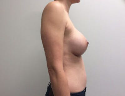 Breast Augmentation Gallery - Patient 4594835 - Image 6