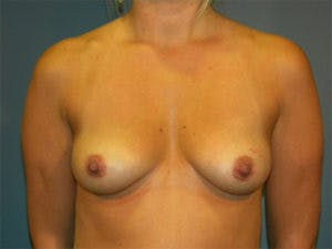 Mastopexy Gallery - Patient 4709855 - Image 1