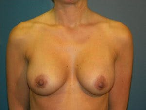 Mastopexy Gallery - Patient 4709855 - Image 2
