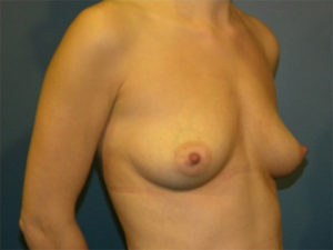 Mastopexy Gallery - Patient 4709856 - Image 2
