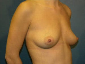 Mastopexy Gallery - Patient 4709856 - Image 1