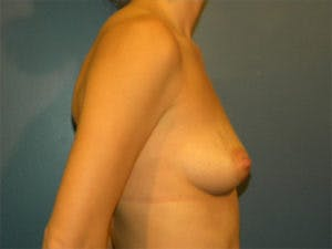 Mastopexy Gallery - Patient 4709856 - Image 3