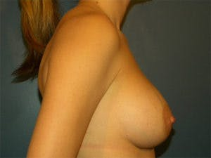 Mastopexy Gallery - Patient 4709856 - Image 4
