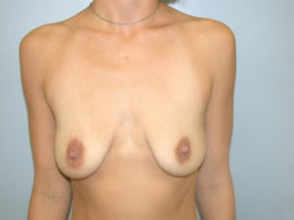 Mastopexy Gallery - Patient 4709857 - Image 1