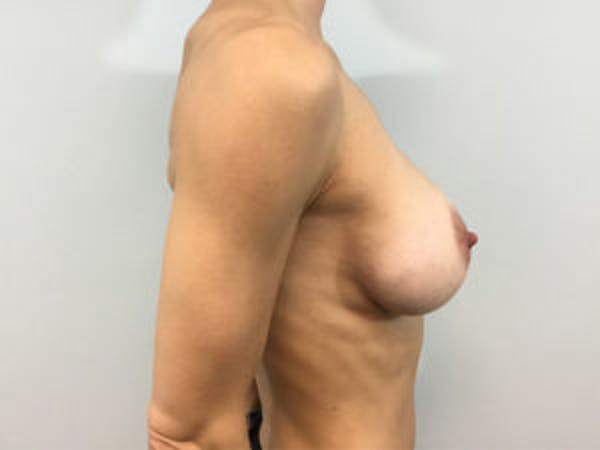 Mastopexy Gallery - Patient 4709857 - Image 4