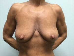 Mastopexy Gallery - Patient 4709858 - Image 1