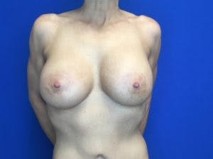 Mastopexy Gallery - Patient 4709858 - Image 2