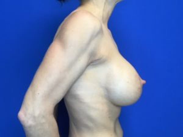 Mastopexy Gallery - Patient 4709858 - Image 4
