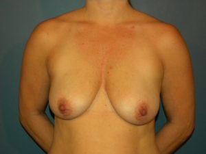 Mastopexy Gallery - Patient 4709859 - Image 5