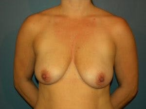Mastopexy Gallery - Patient 4709859 - Image 1