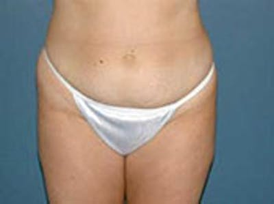 Tummy Tuck (Abdominoplasty) Gallery - Patient 4594886 - Image 1