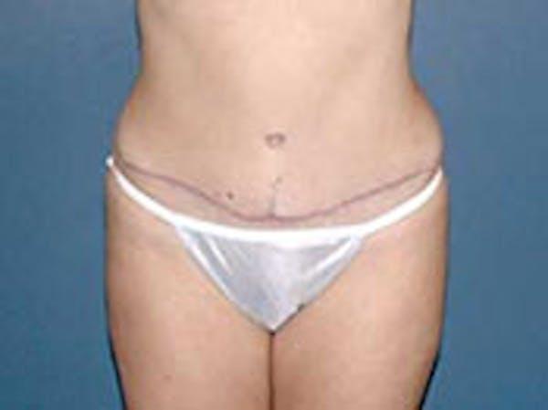 Tummy Tuck (Abdominoplasty) Gallery - Patient 4594886 - Image 2
