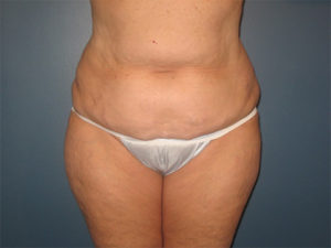 Abdominoplasty Gallery - Patient 4594887 - Image 2