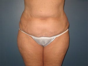 Tummy Tuck (Abdominoplasty) Gallery - Patient 4594887 - Image 1