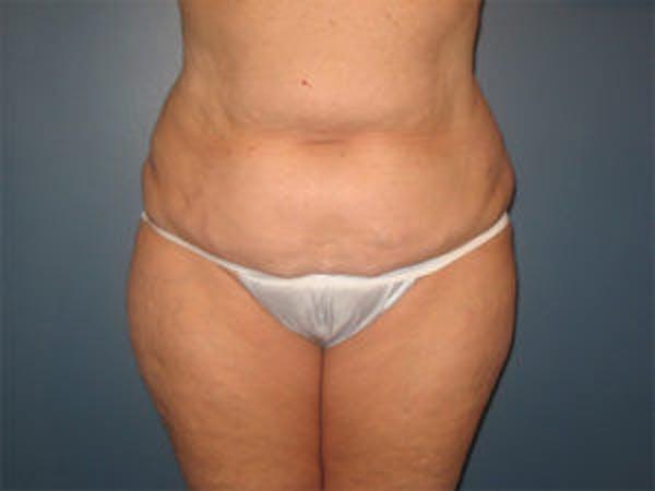 Tummy Tuck (Abdominoplasty) Gallery - Patient 4594887 - Image 1