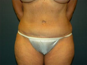 Tummy Tuck (Abdominoplasty) Gallery - Patient 4594887 - Image 2