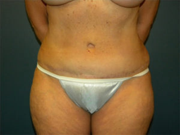 Tummy Tuck (Abdominoplasty) Gallery - Patient 4594887 - Image 2