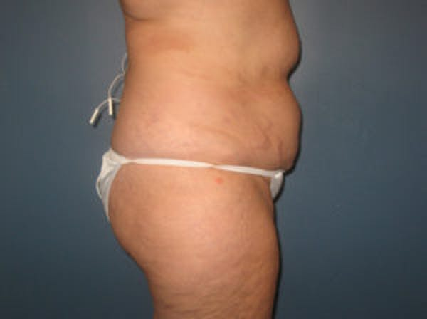 Tummy Tuck (Abdominoplasty) Gallery - Patient 4594887 - Image 3