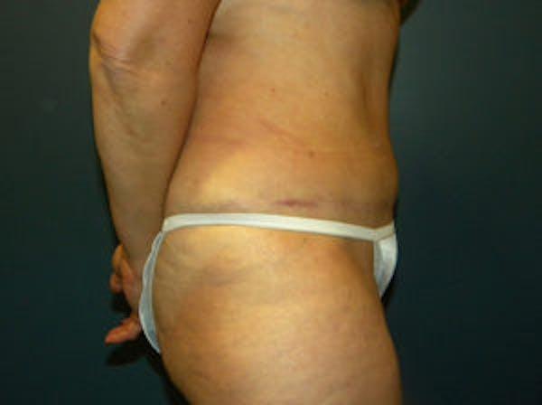 Tummy Tuck (Abdominoplasty) Gallery - Patient 4594887 - Image 4