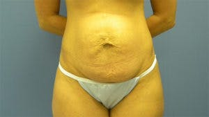 Tummy Tuck (Abdominoplasty) Gallery - Patient 4594888 - Image 1