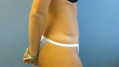 Tummy Tuck (Abdominoplasty) Gallery - Patient 4594888 - Image 4