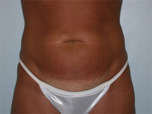Abdominoplasty Gallery - Patient 4594889 - Image 4