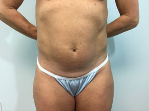 Abdominoplasty Gallery - Patient 4594891 - Image 6