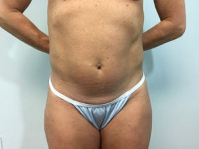 Tummy Tuck (Abdominoplasty) Gallery - Patient 4594891 - Image 1