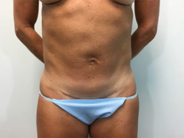 Tummy Tuck (Abdominoplasty) Gallery - Patient 4594891 - Image 2