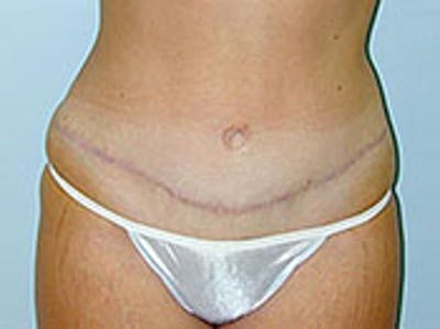 Tummy Tuck (Abdominoplasty) Gallery - Patient 4594892 - Image 2