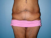Abdominoplasty Gallery - Patient 4594893 - Image 8