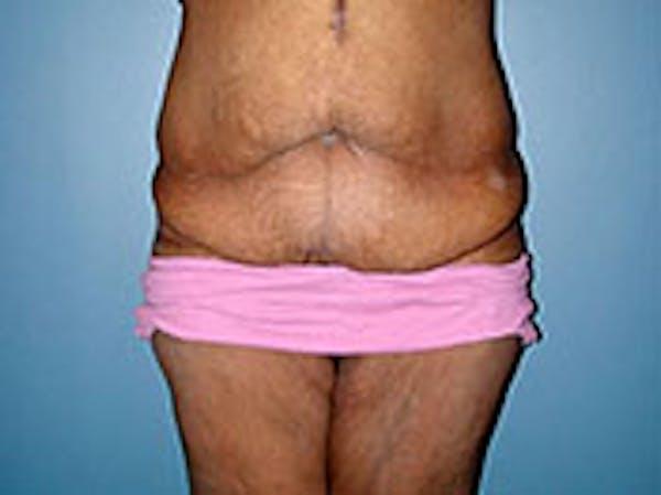 Tummy Tuck (Abdominoplasty) Gallery - Patient 4594893 - Image 1