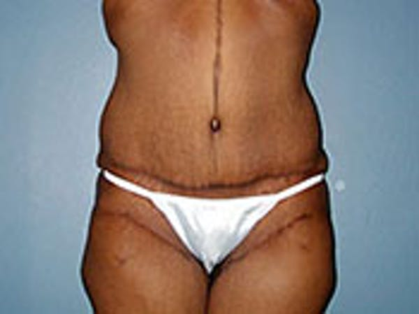 Tummy Tuck (Abdominoplasty) Gallery - Patient 4594893 - Image 2
