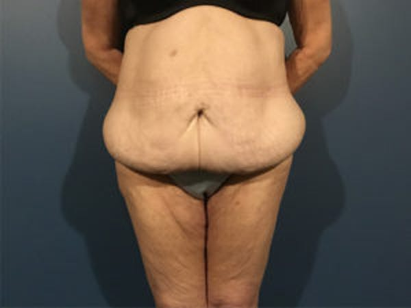 Tummy Tuck (Abdominoplasty) Gallery - Patient 4594894 - Image 1