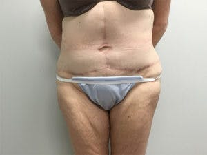 Tummy Tuck (Abdominoplasty) Gallery - Patient 4594894 - Image 2