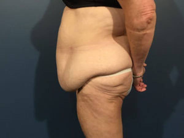 Tummy Tuck (Abdominoplasty) Gallery - Patient 4594894 - Image 3
