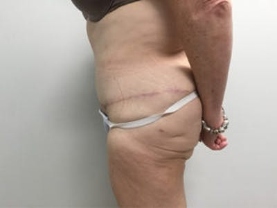 Tummy Tuck (Abdominoplasty) Gallery - Patient 4594894 - Image 4