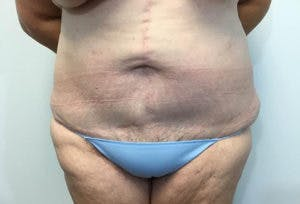 Tummy Tuck (Abdominoplasty) Gallery - Patient 4594896 - Image 2