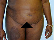Abdominoplasty Gallery - Patient 4594897 - Image 12